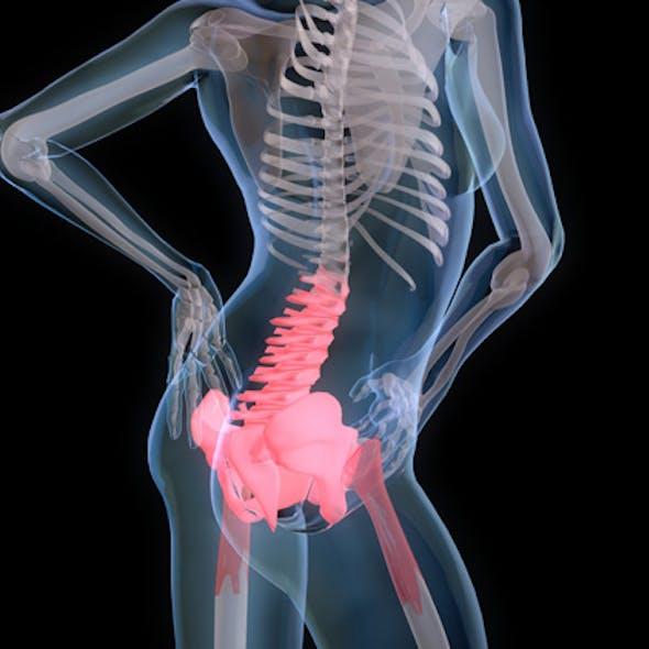 Back Pain medical model